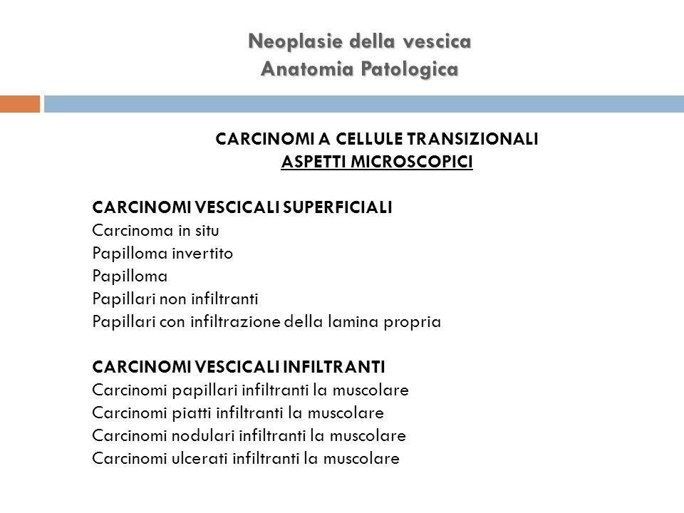 Neoplasie della vescica Anatomia Patologica CARCINOMI A CELLULE TRANSIZIONALI ASPETTI MICROSCOPICI CARCINOMI VESCICALI SUPERFICIALI Carcinoma in situ Papilloma invertito Papilloma Papillari non infiltranti Papillari con infiltrazione della lamina propria CARCINOMI VESCICALI INFILTRANTI Carcinomi papillari infiltranti la muscolare Carcinomi piatti infiltranti la muscolare Carcinomi nodulari infiltranti la muscolare Carcinomi ulcerati infiltranti la muscolare