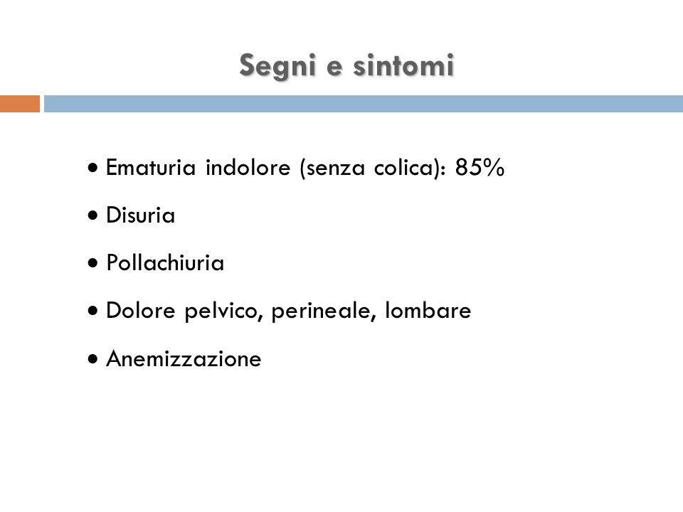 Segni e sintomi  Ematuria indolore (senza colica): 85%  Disuria  Pollachiuria  Dolore pelvico, perineale, lombare  Anemizzazione