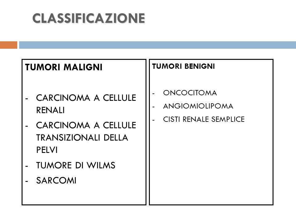 TUMORI MALIGNI -CARCINOMA A CELLULE RENALI -CARCINOMA A CELLULE TRANSIZIONALI DELLA PELVI -TUMORE DI WILMS -SARCOMI TUMORI BENIGNI -ONCOCITOMA -ANGIOMIOLIPOMA -CISTI RENALE SEMPLICE CLASSIFICAZIONE