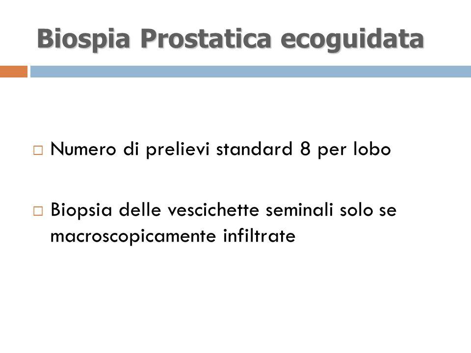 Biospia Prostatica ecoguidata  Numero di prelievi standard 8 per lobo  Biopsia delle vescichette seminali solo se macroscopicamente infiltrate