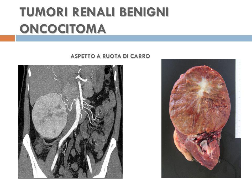 TUMORI RENALI BENIGNI ONCOCITOMA ASPETTO A RUOTA DI CARRO