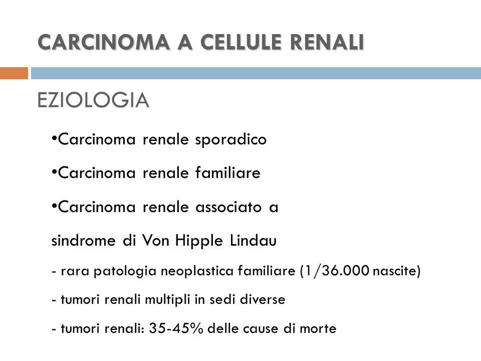CARCINOMA A CELLULE RENALI CARCINOMA A CELLULE RENALI EZIOLOGIA Carcinoma renale sporadico Carcinoma renale familiare Carcinoma renale associato a sindrome di Von Hipple Lindau - rara patologia neoplastica familiare (1/36.000 nascite) - tumori renali multipli in sedi diverse - tumori renali: 35-45% delle cause di morte