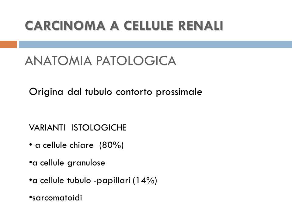 CARCINOMA A CELLULE RENALI CARCINOMA A CELLULE RENALI ANATOMIA PATOLOGICA Origina dal tubulo contorto prossimale VARIANTI ISTOLOGICHE a cellule chiare (80%) a cellule granulose a cellule tubulo -papillari (14%) sarcomatoidi