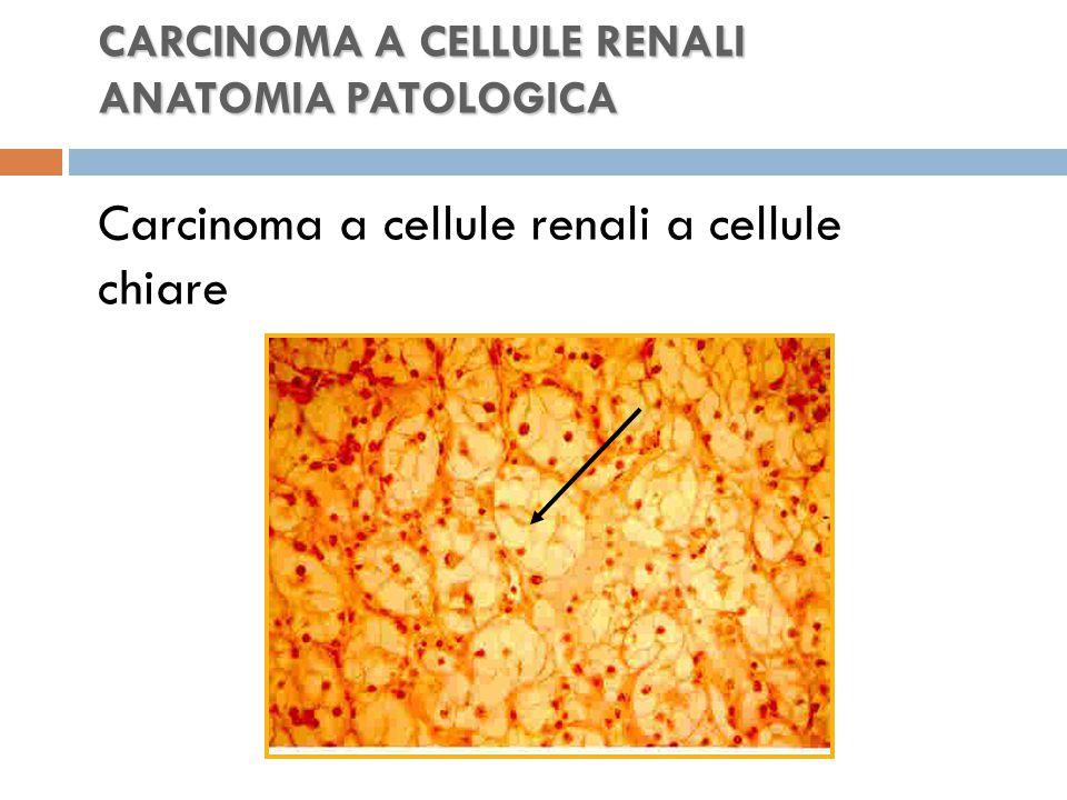 CARCINOMA A CELLULE RENALI ANATOMIA PATOLOGICA CARCINOMA A CELLULE RENALI ANATOMIA PATOLOGICA Carcinoma a cellule renali a cellule chiare