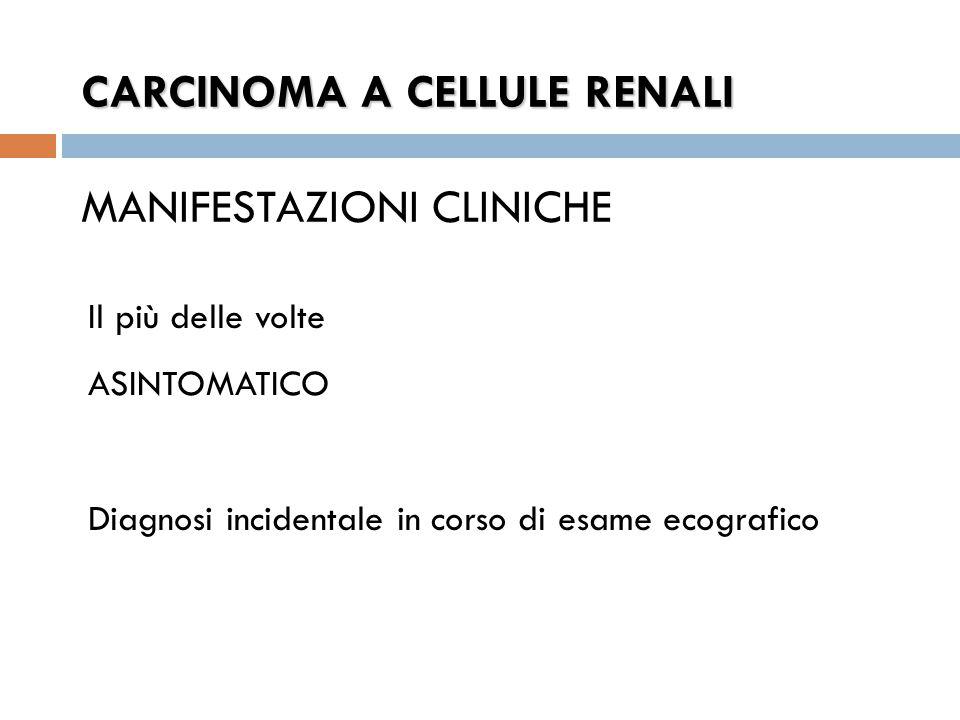 CARCINOMA A CELLULE RENALI CARCINOMA A CELLULE RENALI MANIFESTAZIONI CLINICHE Il più delle volte ASINTOMATICO Diagnosi incidentale in corso di esame ecografico