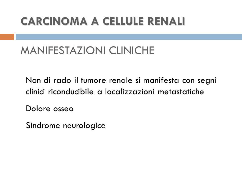 CARCINOMA A CELLULE RENALI CARCINOMA A CELLULE RENALI MANIFESTAZIONI CLINICHE Non di rado il tumore renale si manifesta con segni clinici riconducibile a localizzazioni metastatiche Dolore osseo Sindrome neurologica