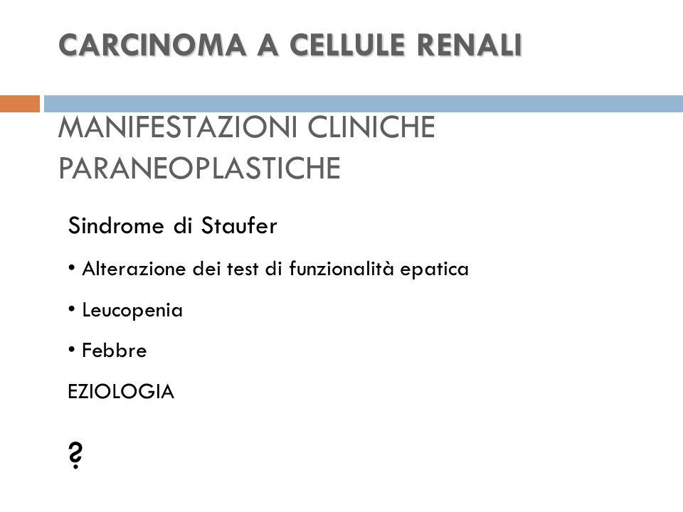 CARCINOMA A CELLULE RENALI CARCINOMA A CELLULE RENALI MANIFESTAZIONI CLINICHE PARANEOPLASTICHE Sindrome di Staufer Alterazione dei test di funzionalità epatica Leucopenia Febbre EZIOLOGIA ?