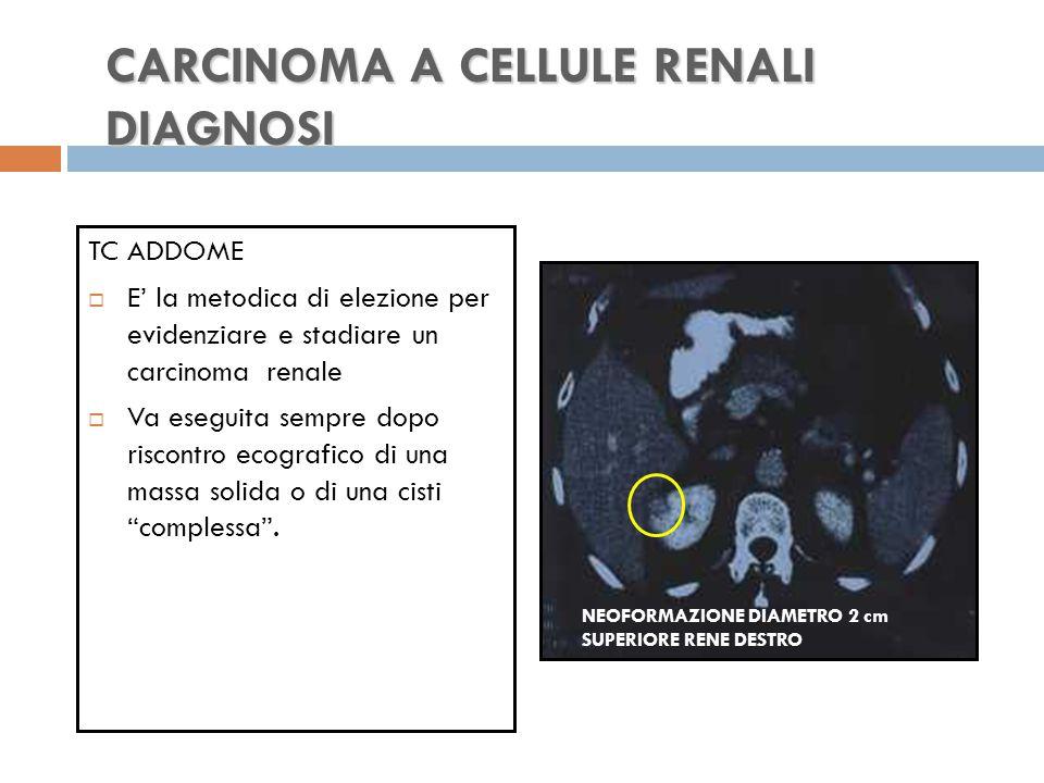 CARCINOMA A CELLULE RENALI DIAGNOSI TC ADDOME  E' la metodica di elezione per evidenziare e stadiare un carcinoma renale  Va eseguita sempre dopo riscontro ecografico di una massa solida o di una cisti complessa .