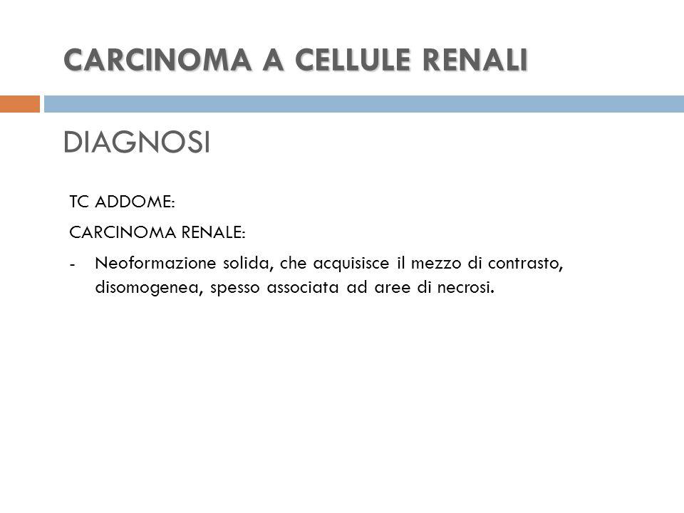 CARCINOMA A CELLULE RENALI CARCINOMA A CELLULE RENALI DIAGNOSI TC ADDOME: CARCINOMA RENALE: -Neoformazione solida, che acquisisce il mezzo di contrasto, disomogenea, spesso associata ad aree di necrosi.