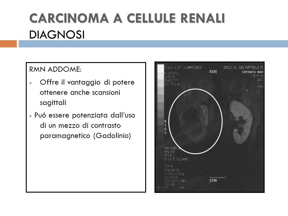 CARCINOMA A CELLULE RENALI CARCINOMA A CELLULE RENALI DIAGNOSI RMN ADDOME: -Offre il vantaggio di potere ottenere anche scansioni sagittali - Può essere potenziata dall'uso di un mezzo di contrasto paramagnetico (Gadolinio)