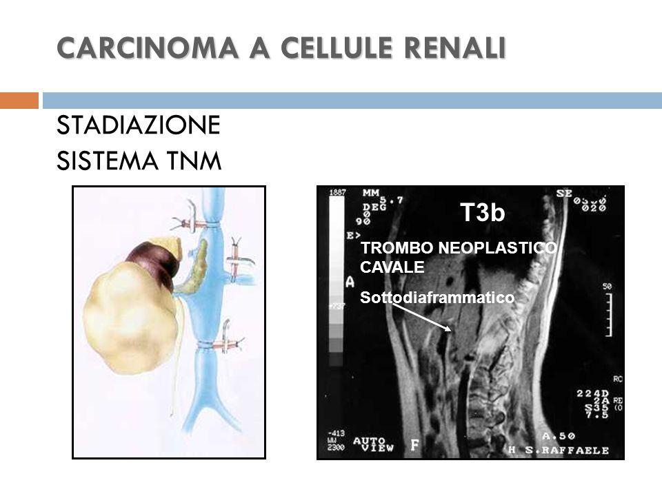 CARCINOMA A CELLULE RENALI CARCINOMA A CELLULE RENALI STADIAZIONE SISTEMA TNM T3b TROMBO NEOPLASTICO CAVALE Sottodiaframmatico