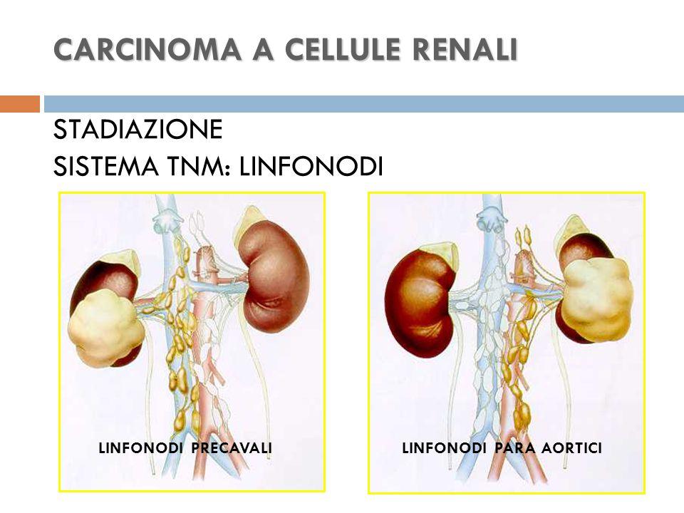 CARCINOMA A CELLULE RENALI CARCINOMA A CELLULE RENALI STADIAZIONE SISTEMA TNM: LINFONODI LINFONODI PRECAVALILINFONODI PARA AORTICI