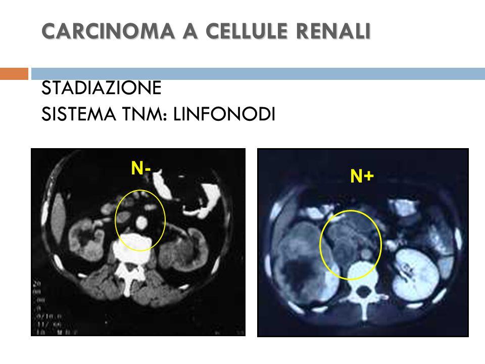 CARCINOMA A CELLULE RENALI CARCINOMA A CELLULE RENALI STADIAZIONE SISTEMA TNM: LINFONODI N- N+