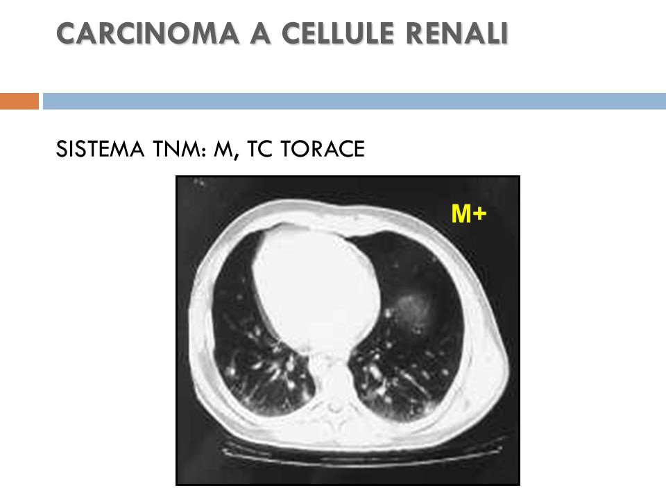 CARCINOMA A CELLULE RENALI CARCINOMA A CELLULE RENALI SISTEMA TNM: M, TC TORACE M+