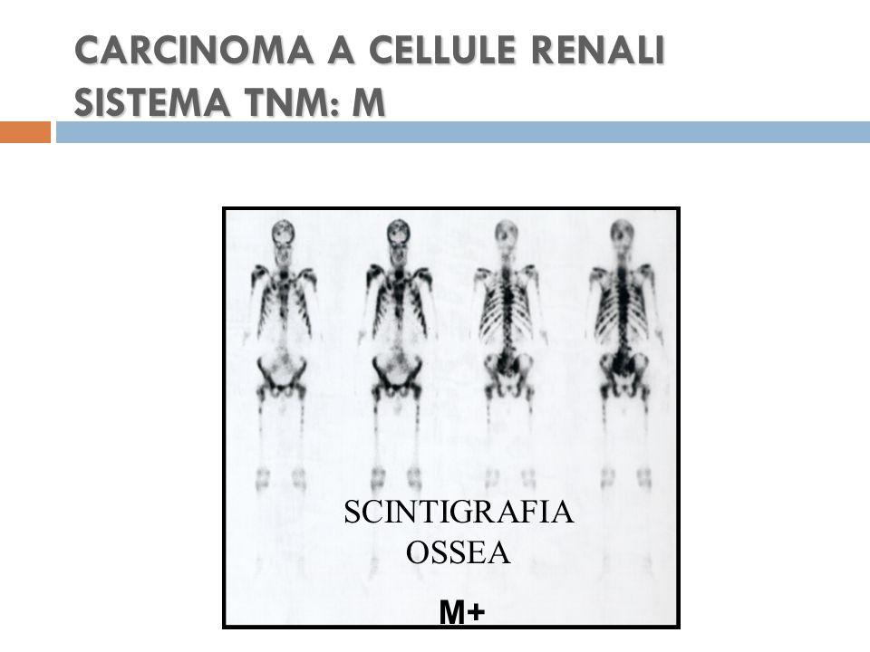 CARCINOMA A CELLULE RENALI SISTEMA TNM: M SCINTIGRAFIA OSSEA M+