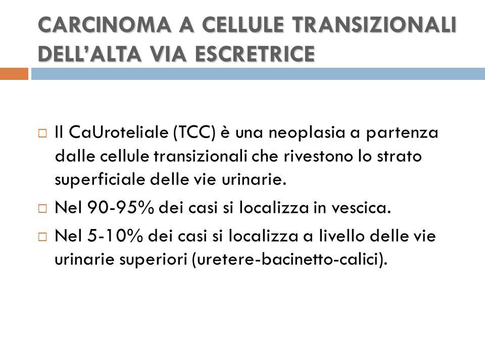 CARCINOMA A CELLULE TRANSIZIONALI DELL'ALTA VIA ESCRETRICE  Il CaUroteliale (TCC) è una neoplasia a partenza dalle cellule transizionali che rivestono lo strato superficiale delle vie urinarie.