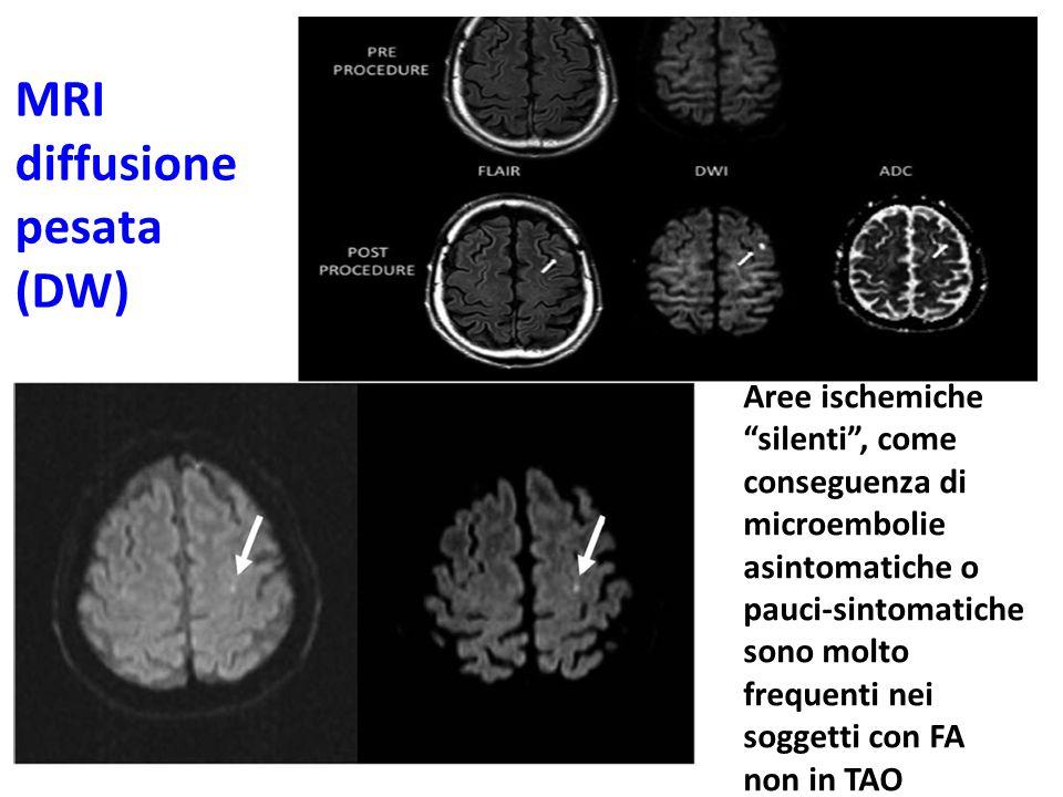 """MRI diffusione pesata (DW) Aree ischemiche """"silenti"""", come conseguenza di microembolie asintomatiche o pauci-sintomatiche sono molto frequenti nei sog"""