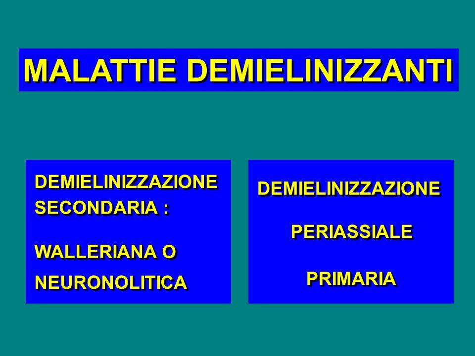MALATTIE DEMIELINIZZANTI DEMIELINIZZAZIONEDEMIELINIZZAZIONE PERIASSIALEPERIASSIALE PRIMARIAPRIMARIA DEMIELINIZZAZIONEDEMIELINIZZAZIONE SECONDARIA : WA