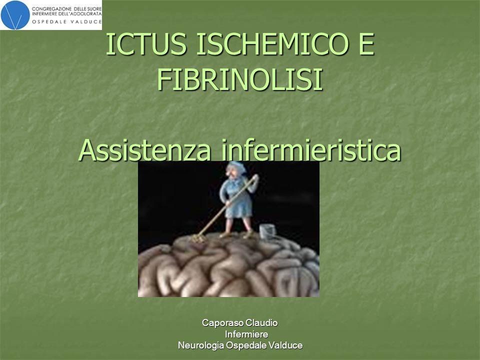 Caporaso Claudio Infermiere Neurologia Ospedale Valduce ICTUS ISCHEMICO E FIBRINOLISI Assistenza infermieristica
