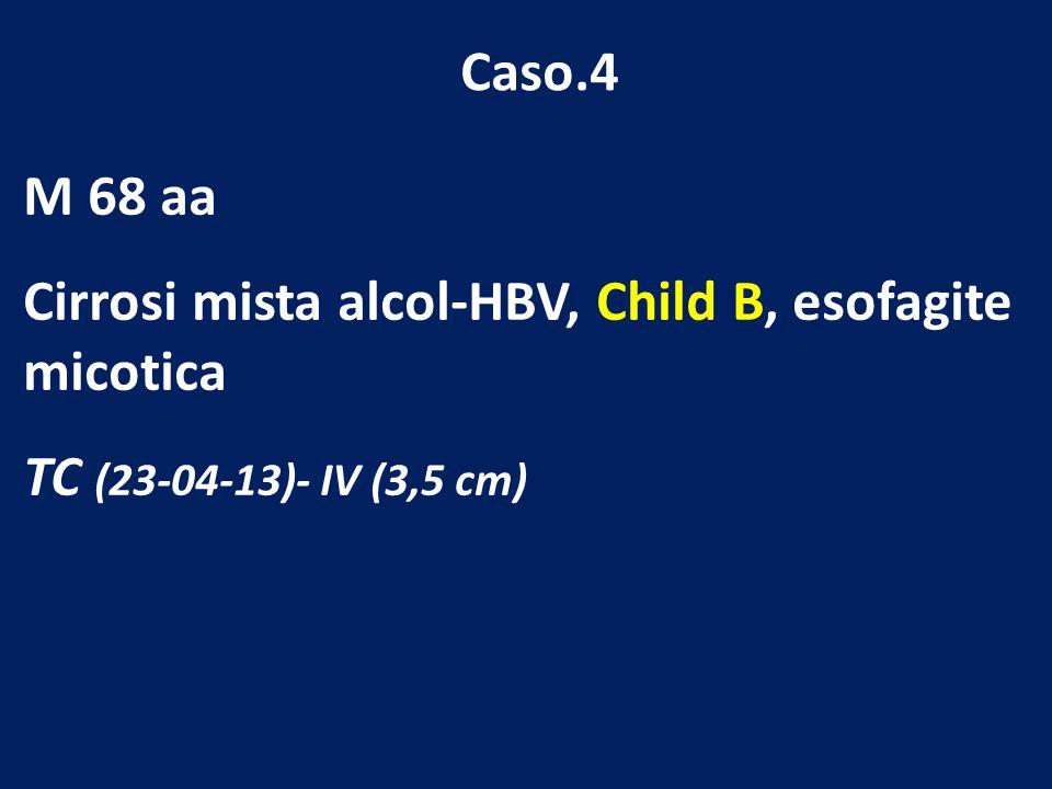 Caso.4 M 68 aa Cirrosi mista alcol-HBV, Child B, esofagite micotica TC (23-04-13)- IV (3,5 cm)