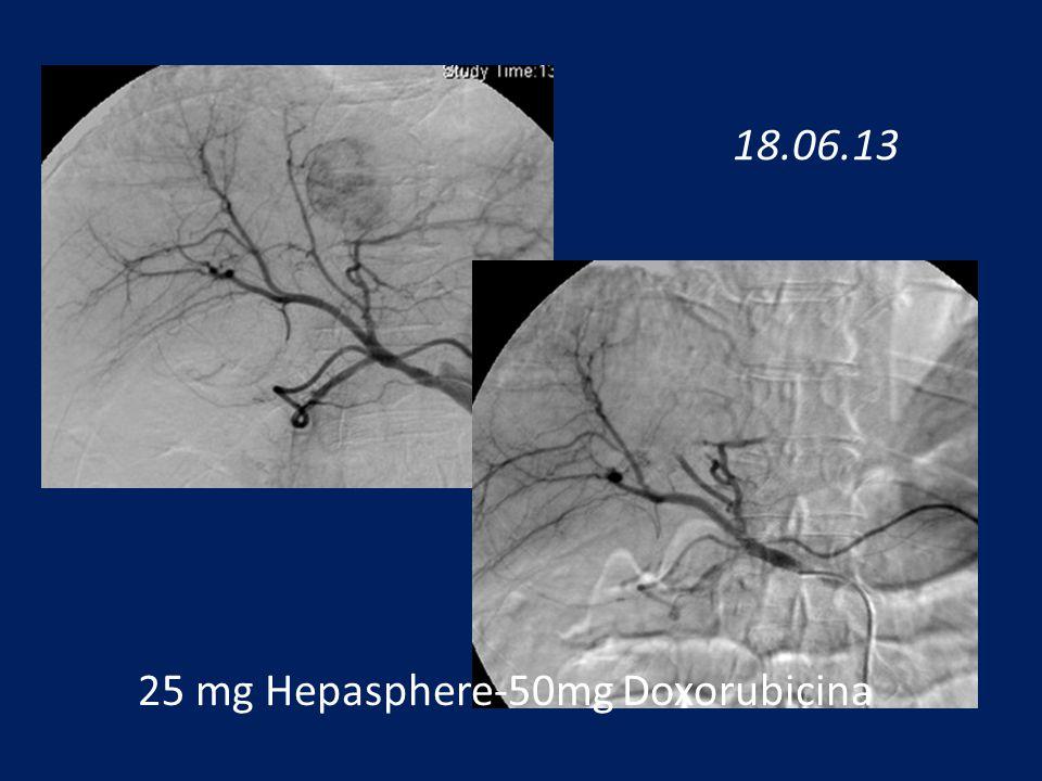 25 mg Hepasphere-50mg Doxorubicina 18.06.13