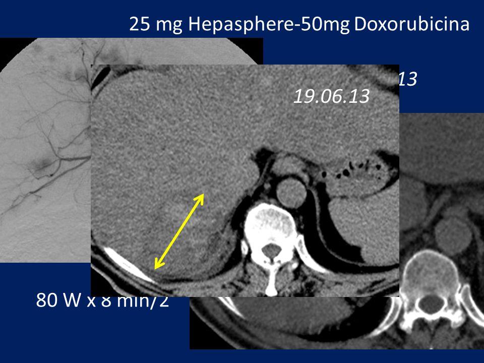 Conclusioni Trattamento combinato miglior controllo di malattia Maggiori aree di necrosi Lipiodol per visualizzazione nodulazioni satelliti prima della termoablazione