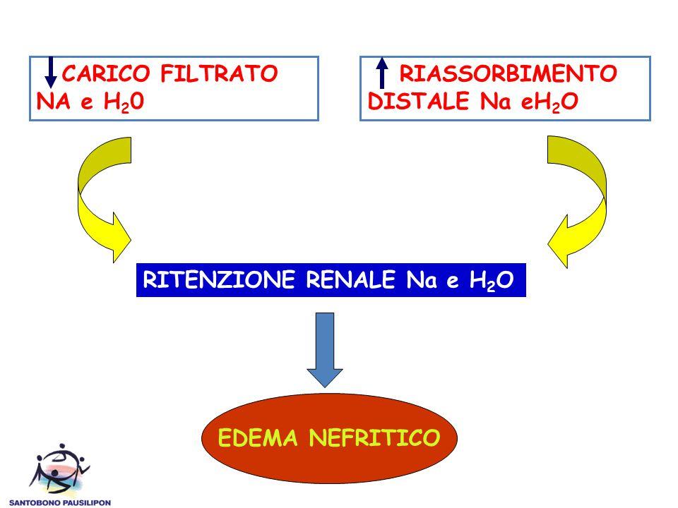 CARICO FILTRATO NA e H 2 0 RIASSORBIMENTO DISTALE Na eH 2 O RITENZIONE RENALE Na e H 2 O EDEMA NEFRITICO