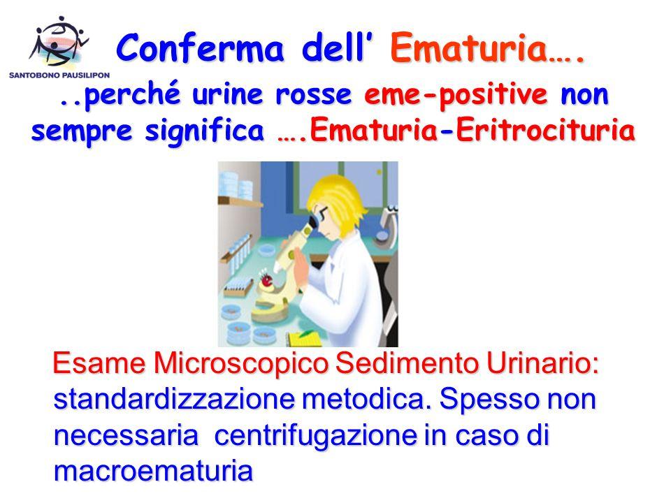 Esame Microscopico Sedimento Urinario: standardizzazione metodica. Spesso non necessaria centrifugazione in caso di macroematuria Esame Microscopico S
