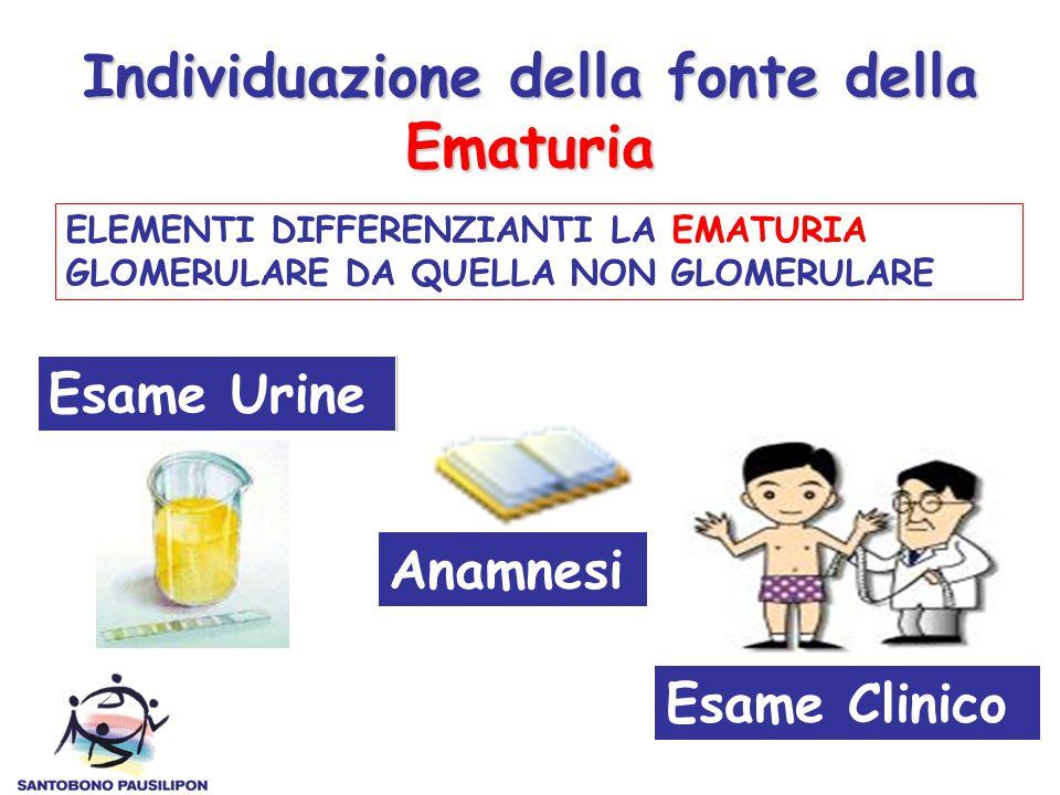 Individuazione della fonte della Ematuria ELEMENTI DIFFERENZIANTI LA EMATURIA GLOMERULARE DA QUELLA NON GLOMERULARE Esame Urine Anamnesi Esame Clinico