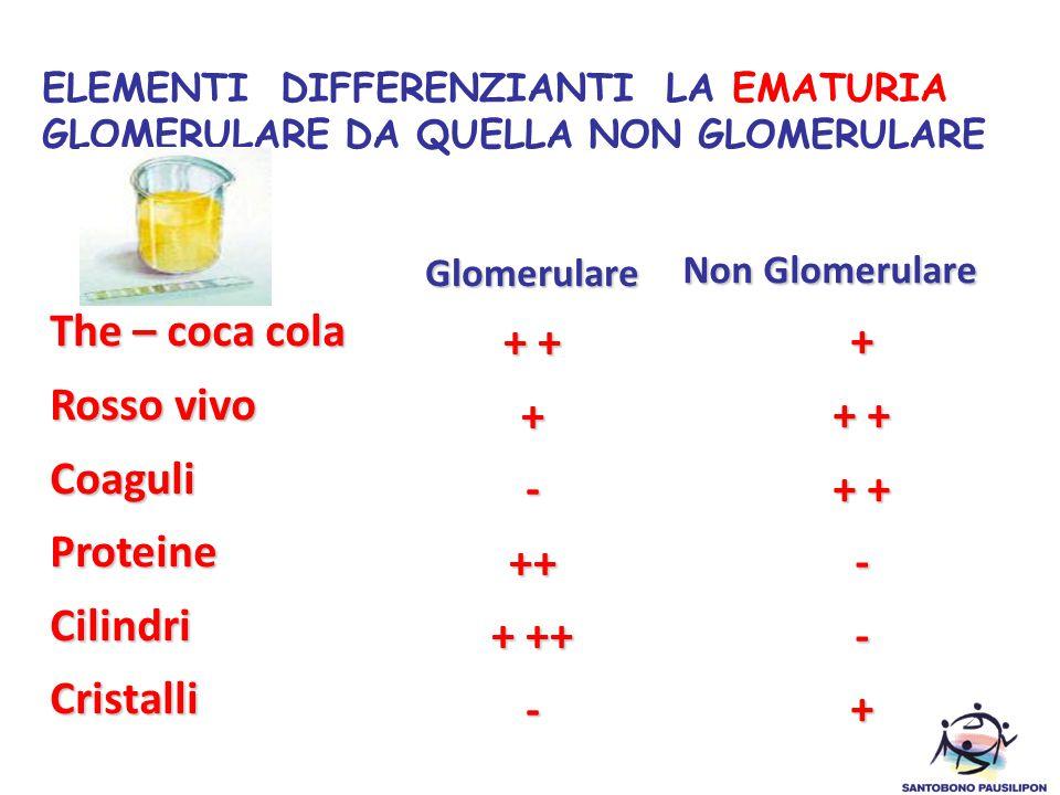 ELEMENTI DIFFERENZIANTI LA EMATURIA GLOMERULARE DA QUELLA NON GLOMERULARE The – coca cola Rosso vivo CoaguliProteineCilindriCristalli Glomerulare + +