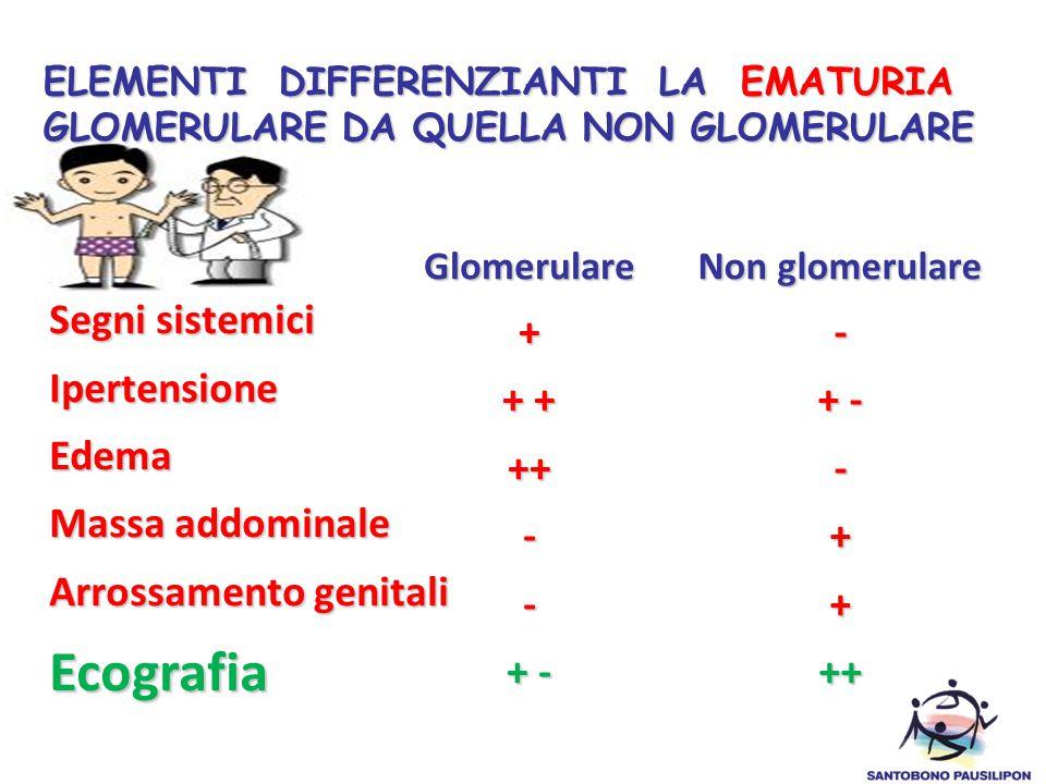 Segni sistemici IpertensioneEdema Massa addominale Arrossamento genitali Ecografia Glomerulare+ + + ++-- + - Non glomerulare - + - -++++ ELEMENTI DIFF