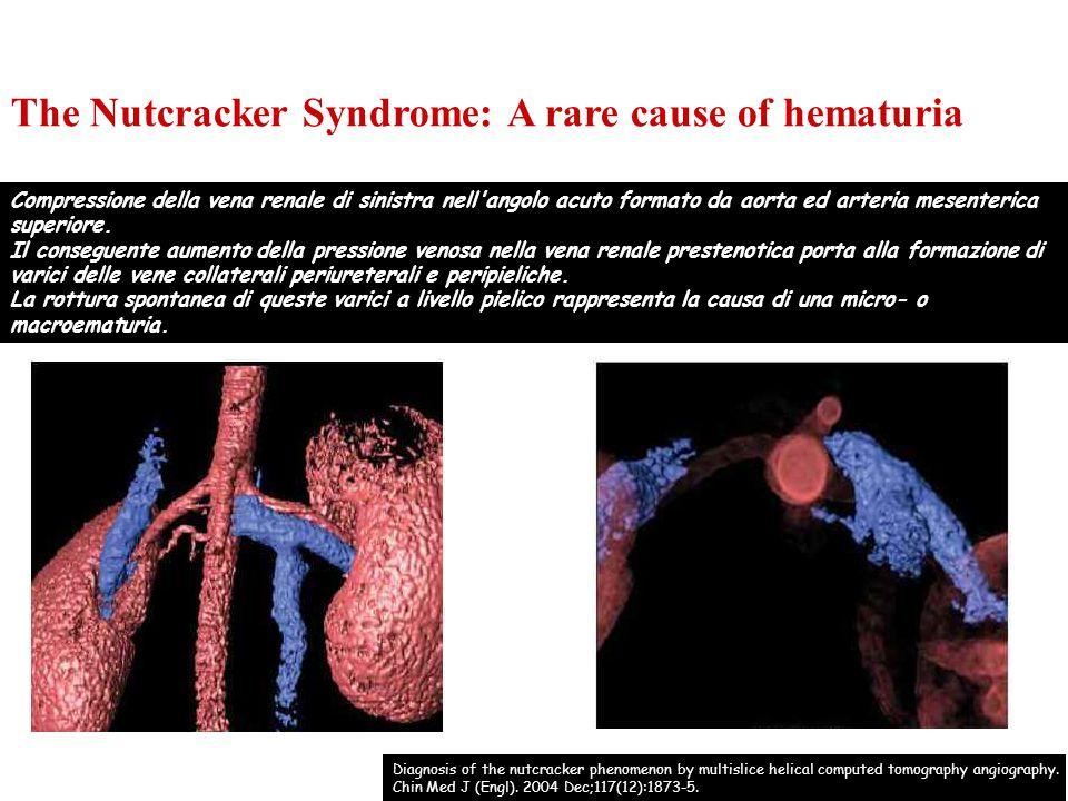 Compressione della vena renale di sinistra nell'angolo acuto formato da aorta ed arteria mesenterica superiore. Il conseguente aumento della pressione