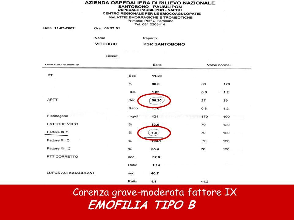 Carenza grave-moderata fattore IX EMOFILIA TIPO B