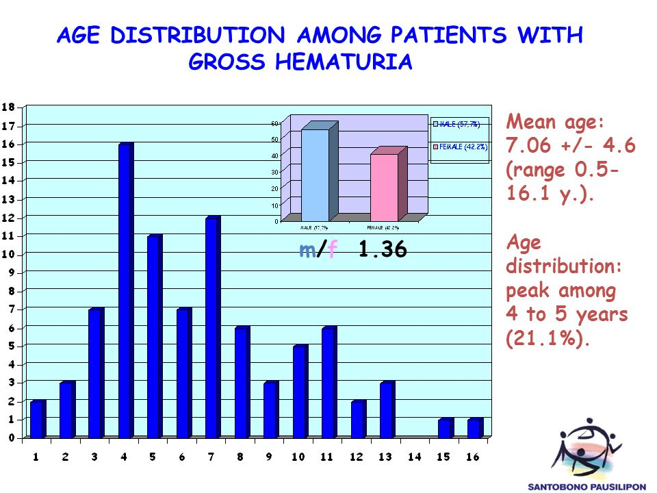 AGE DISTRIBUTION AMONG PATIENTS WITH GROSS HEMATURIA Mean age: 7.06 +/- 4.6 (range 0.5- 16.1 y.). Age distribution: peak among 4 to 5 years (21.1%). m