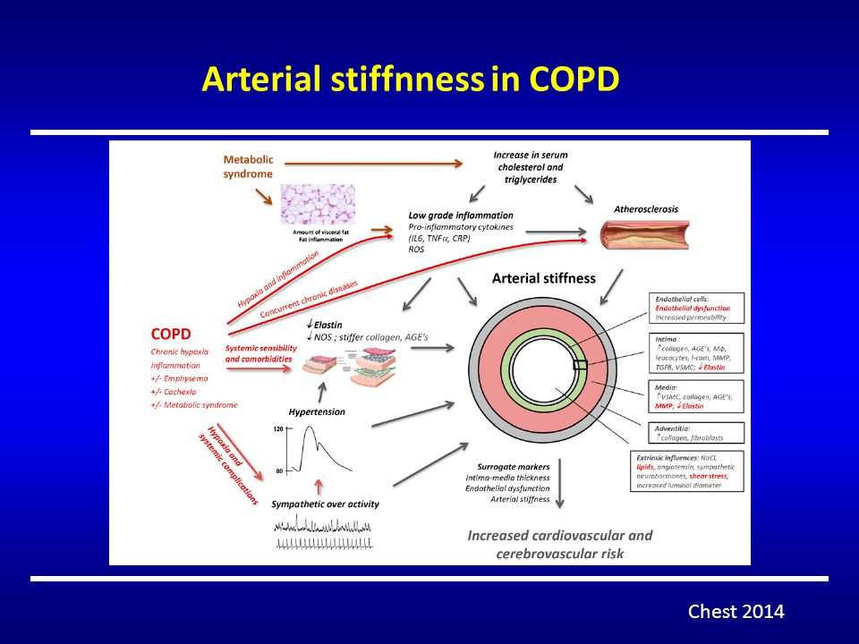 Arterial stiffnness in COPD Chest 2014