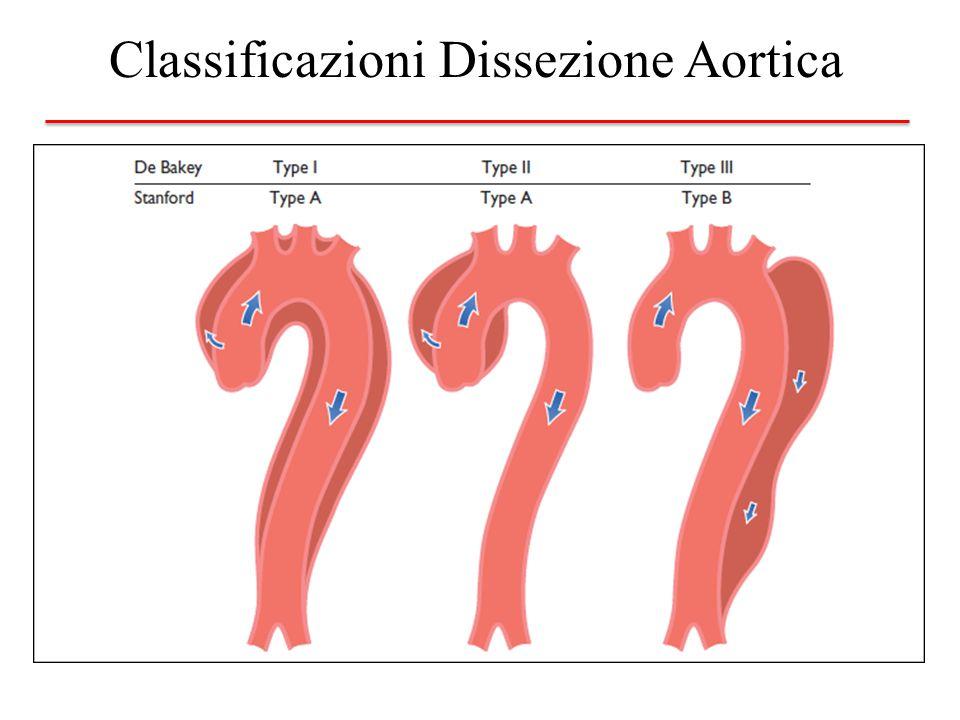 Classificazioni Dissezione Aortica