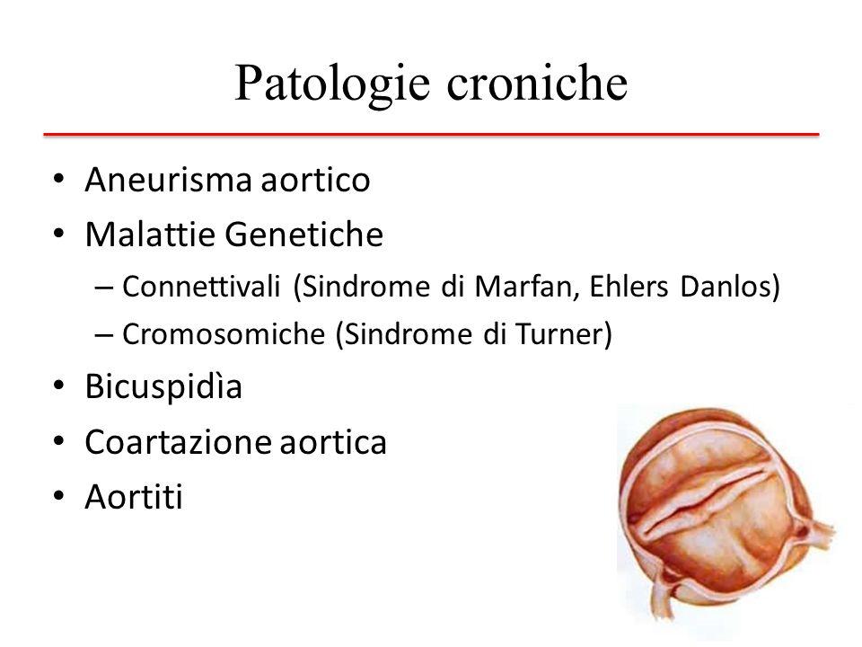 Patologie croniche Aneurisma aortico Malattie Genetiche – Connettivali (Sindrome di Marfan, Ehlers Danlos) – Cromosomiche (Sindrome di Turner) Bicuspi