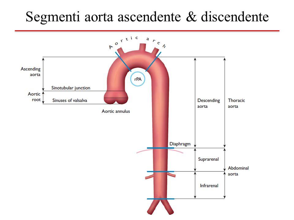 Tomografia Computerizzata Giunzione seno-tubulare Aorta ascendente Arco aortico origine arteria anonima Arco aortico tra CC sx e succlavia Aorta discendente tratto prossimale Aorta discendente tratto medio Aorta discendente diaframma Aorta addominale origine tronco celiaco Carrefour aortico Seni di Valsalva
