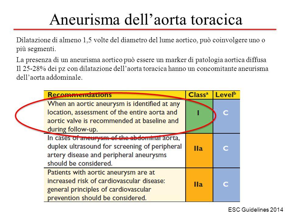 Aneurisma dell'aorta toracica Dilatazione di almeno 1,5 volte del diametro del lume aortico, può coinvolgere uno o più segmenti.