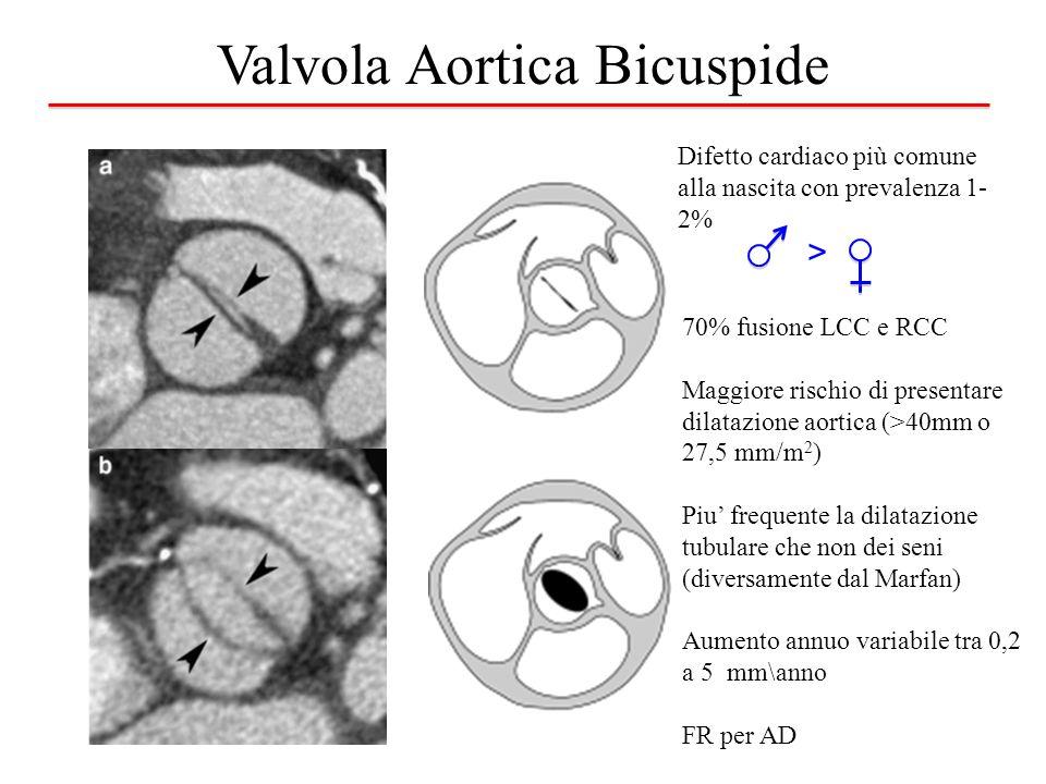 Valvola Aortica Bicuspide Difetto cardiaco più comune alla nascita con prevalenza 1- 2% > 70% fusione LCC e RCC Maggiore rischio di presentare dilatazione aortica (>40mm o 27,5 mm/m 2 ) Piu' frequente la dilatazione tubulare che non dei seni (diversamente dal Marfan) Aumento annuo variabile tra 0,2 a 5 mm\anno FR per AD