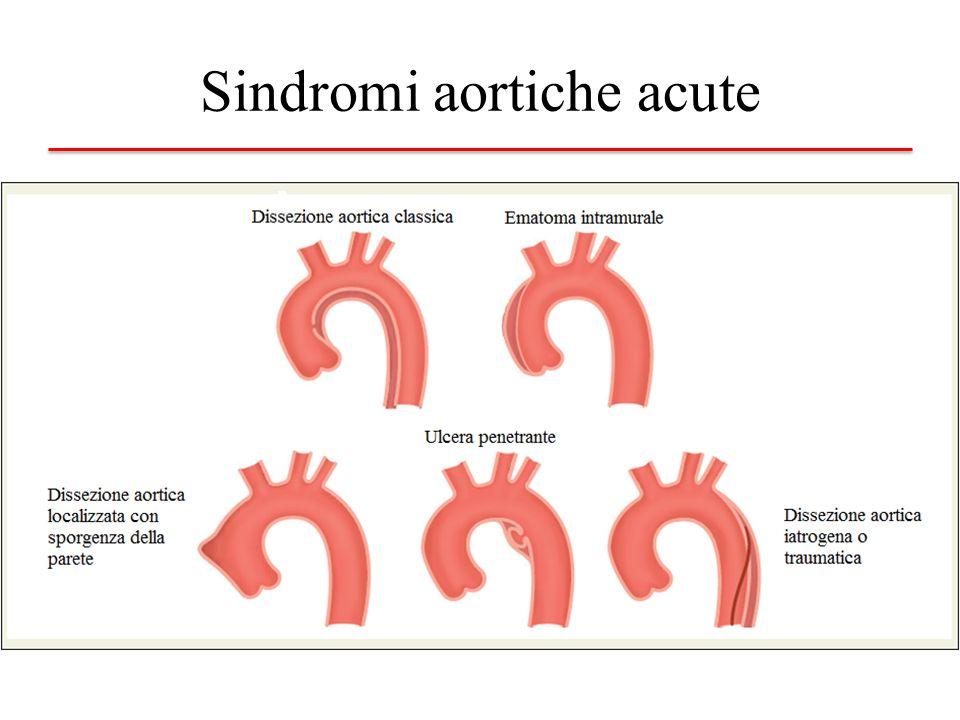 Patologie croniche Aneurisma aortico Malattie Genetiche – Connettivali (Sindrome di Marfan, Ehlers Danlos) – Cromosomiche (Sindrome di Turner) Bicuspidìa Coartazione aortica Aortiti
