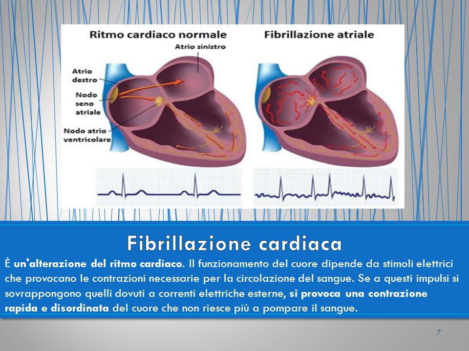 È un'alterazione del ritmo cardiaco. Il funzionamento del cuore dipende da stimoli elettrici che provocano le contrazioni necessarie per la circolazio