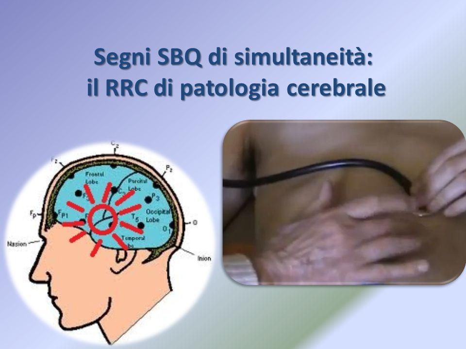 Segni SBQ di simultaneità: il RRC di patologia cerebrale