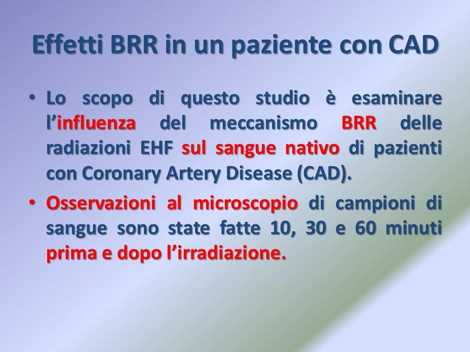 Effetti BRR in un paziente con CAD Lo scopo di questo studio è esaminare l'influenza del meccanismo BRR delle radiazioni EHF sul sangue nativo di pazi