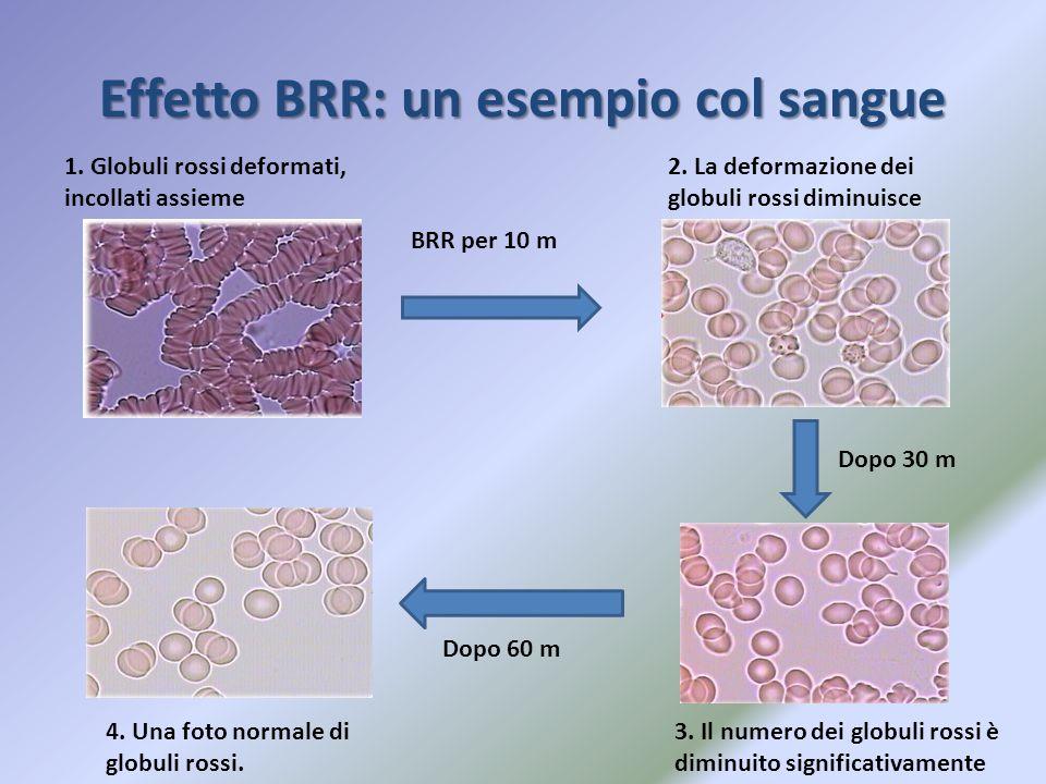 Effetto BRR: un esempio col sangue 1. Globuli rossi deformati, incollati assieme BRR per 10 m 2. La deformazione dei globuli rossi diminuisce Dopo 30