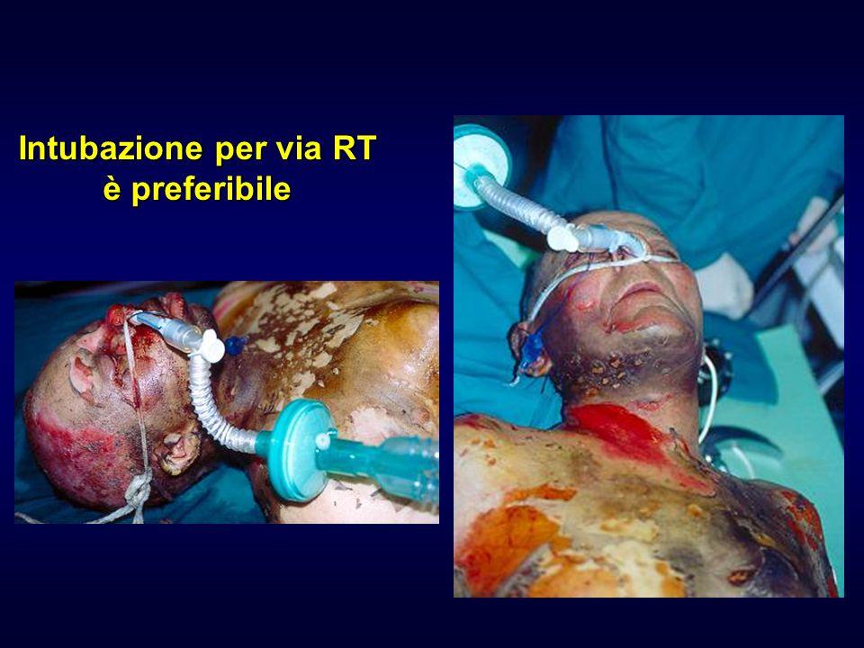 Intubazione per via RT è preferibile