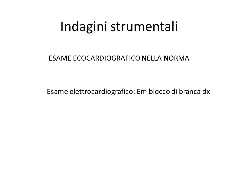 Indagini strumentali ESAME ECOCARDIOGRAFICO NELLA NORMA Esame elettrocardiografico: Emiblocco di branca dx