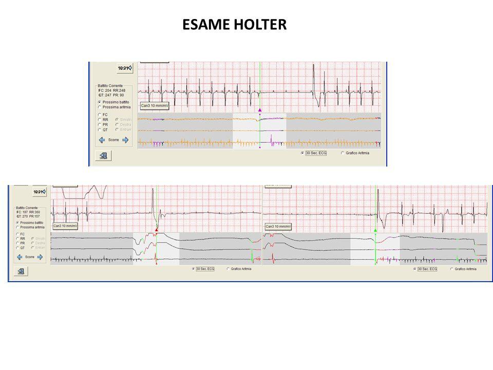 ESAME HOLTER