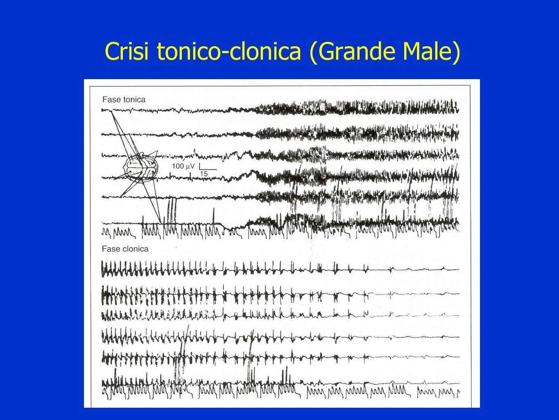 Crisi tonico-clonica (Grande Male)