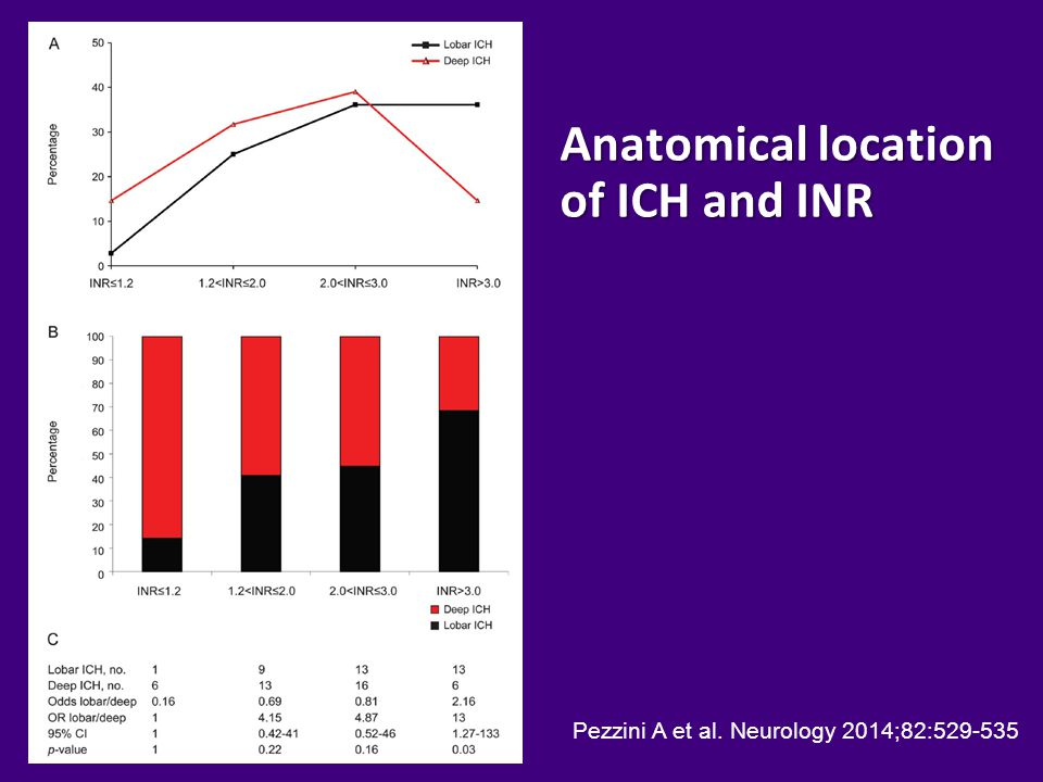Anatomical location of ICH and INR Pezzini A et al. Neurology 2014;82:529-535